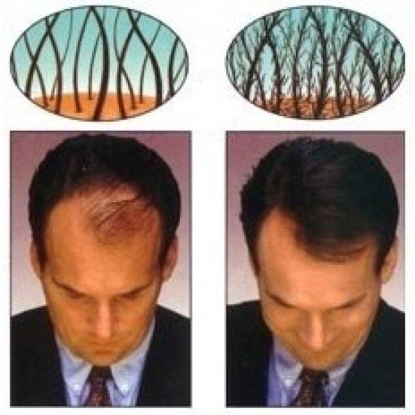 Кератинови фибри за сгъстяване на коса